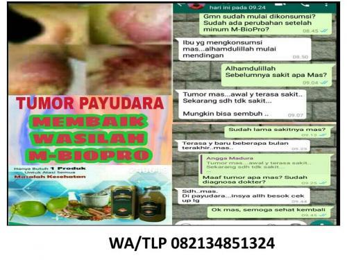 WA/TLP 082134851324 TERBAIK, MADU PROPOLIS  UNTUK KANKER PAYUDARA  SEMARANG